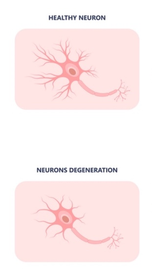 A graphic displaying a healthy neurone beside a neurone from a person with Huntington's disease.